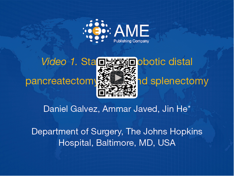 Staple-free robotic distal pancreatectomy and splenectomy - Galvez
