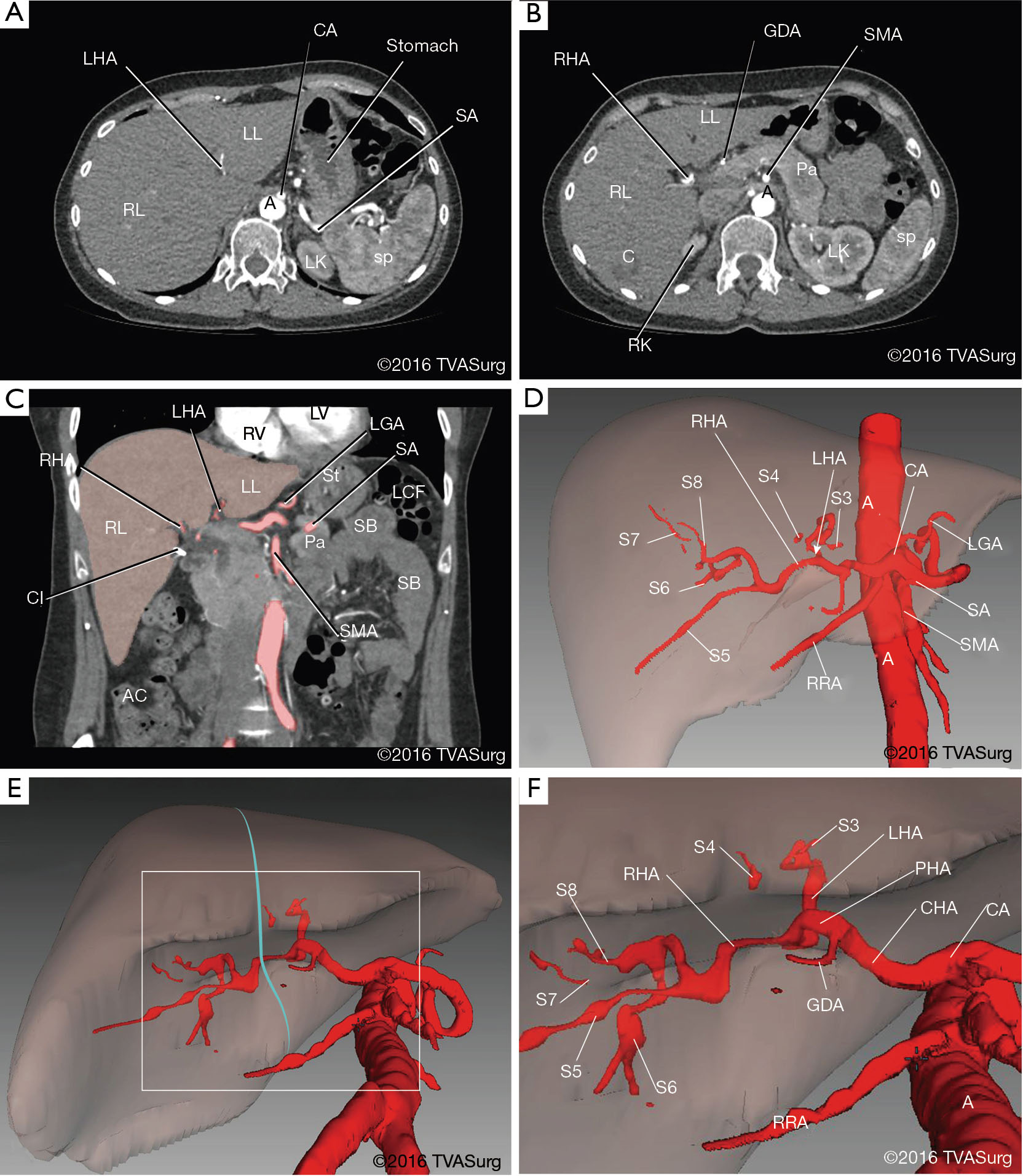 Depicting surgical anatomy of the porta hepatis in living donor ...